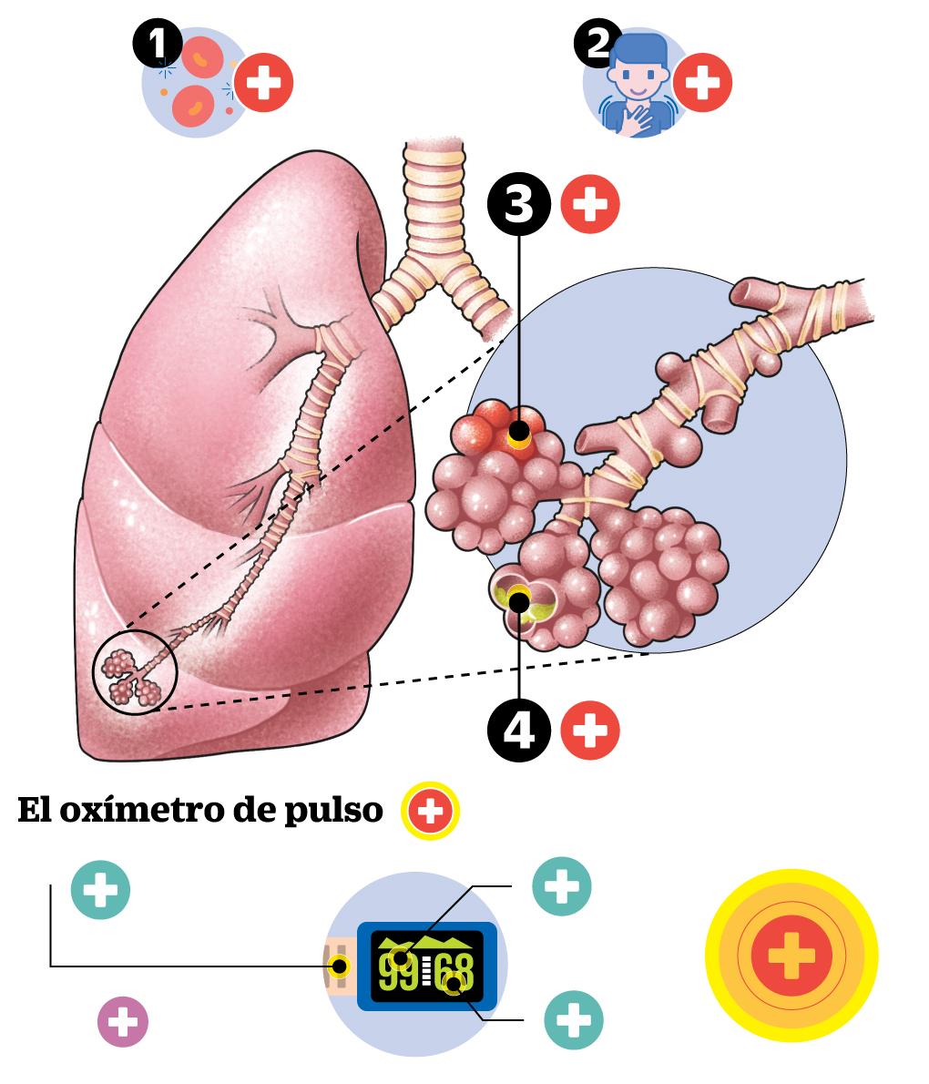 infografía - La neumonía silenciosa